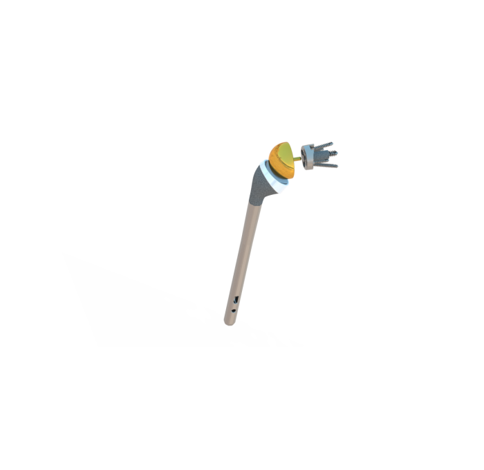 Prothèse totale d'épaule inversée Inlay ISA tige longue avec verrouillage