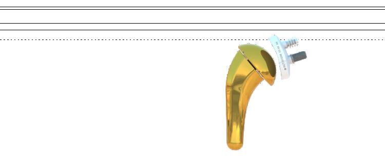 Prothèse ISA anatomique Onlay