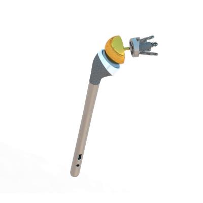 Prothèse ISA inversée Inlay